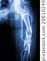 Film X-ray show comminute fracture shaft of femur 20610240