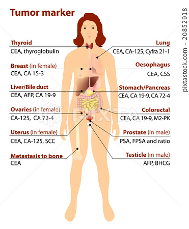 Tumor Marker Stock Illustration 20852918 Pixta