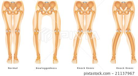 Bandy-legs 21137967
