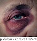 Senior Abuse 21176578