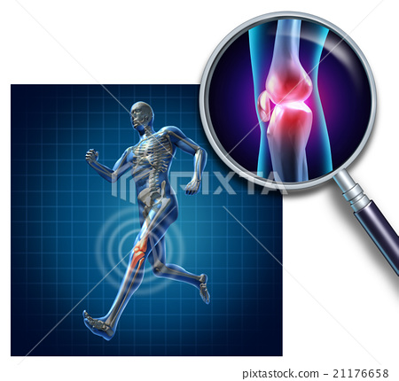 Sports Knee Injury 21176658