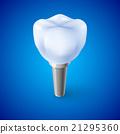 牙科 植入 螺丝 21295360