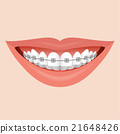 Smile with Braces 21648426