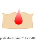 acne 21679504