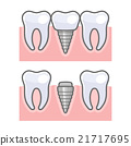 Dental Implant and Tooth Set. Vector 21717695