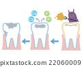 齲齒 蛀洞 解釋 22060009