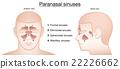 Paranasal Sinuses Anterior Lateral 22226662