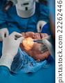 Glaucoma surgery 22262446