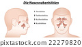 Paranasal Sinuses German Names 22279820