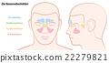 Paranasal Sinuses German Text 22279821