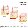 Laser hair removal. Vector diagram 22313713