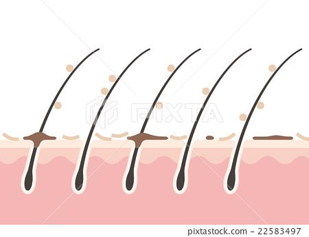 scalp with dandruff - stock illustration [22583497] - pixta  pixta