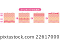 skin, cross-section, diagram 22617000