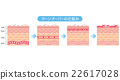 skin, cross-section, diagram 22617028