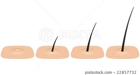 Skin pores 22857732