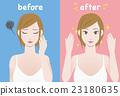 acne care, skincare, female 23180635