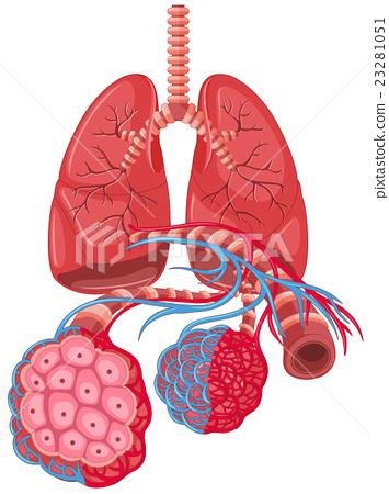 Diagram showing lung cancer - Stock Illustration [23281051] - PIXTA