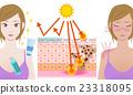 กลไกของการถูกแดดเผาโดยมีและไม่มีครีมกันแดด 23318095