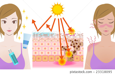 Mechanism of sunburn With and without sunscreen 23318095