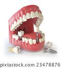 Tooth human implant. Dental concept. Human teeth  23478876