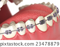 Teeth with braces or brackets in open human mouth. 23478879