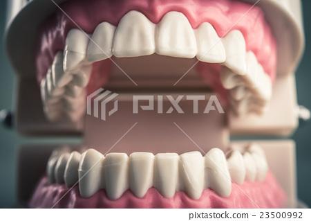 牙齒模型 23500992