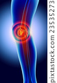 Knee painful - skeleton x-ray. 23535273