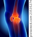 Knee painful - skeleton x-ray. 23535274