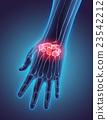 3D illustration of Carpal, medical concept. 23542212