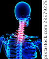 Neck painful skeleton x-ray, 3D illustration. 23579275