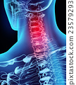 3D illustration x-ray neck painful. 23579293