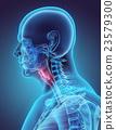 3D illustration of Epiglottis, medical concept. 23579300