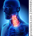 Neck painful - cervica spine, 3D illustration. 23644685