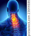 Neck painful - cervica spine, 3D illustration. 23644686