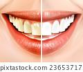 向量圖 向量 牙齒 23653717