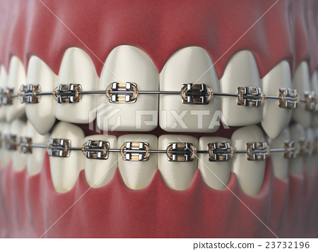 Teeth with braces or brackets in open human mouth 23732196