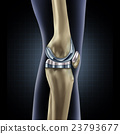 Knee Replacement 23793677