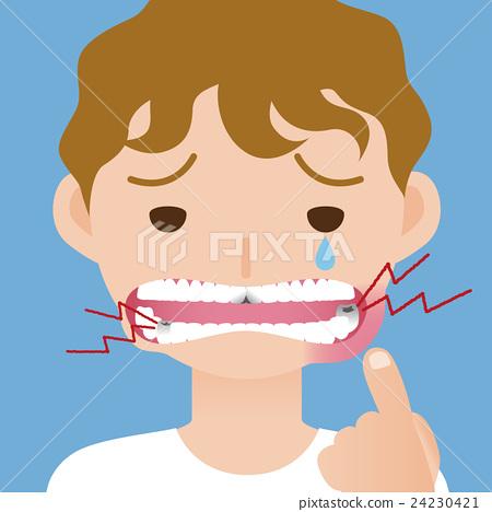 孩子的牙痛·口腔炎 24230421