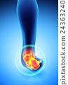 脚踝 疼痛 解剖学 24363240