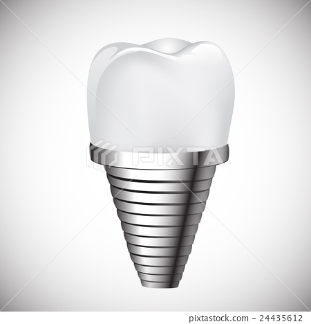 Dental implant and teeth. 24435612