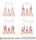 Periodontal disease 24526283