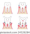 Periodontal disease 24526284
