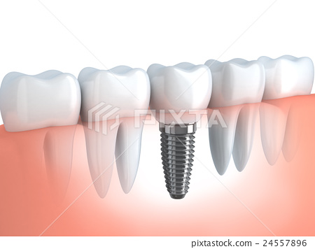 Dental implant 24557896