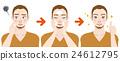 男性的痤瘡護理步驟圖 24612795