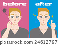 acne care, gents, males 24612797