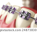 Teeth with braces or brackets in open human mouth 24873830