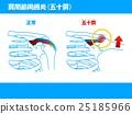 어깨 관절 주위염 (오십견) 25185966
