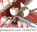 Tooth human implant. Dental implantation concept. 25402437