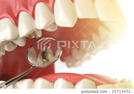 Human tooth with caries, hole and tools. 25713472