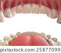 牙科 牙齿 嘴 25877099
